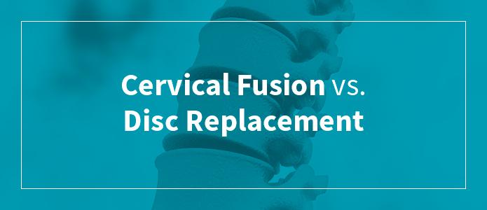 Cervical Fusion vs. Disc Replacement